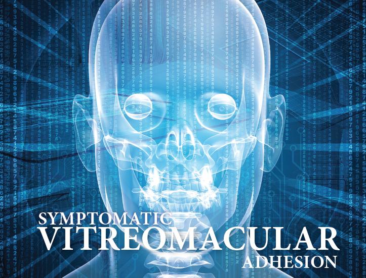 Vitreomacular