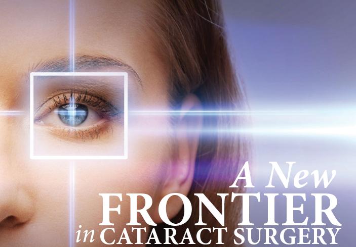 CataractSurgery